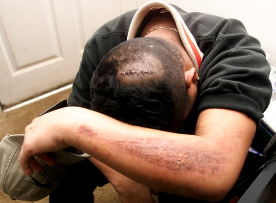 Christian Ortiz's injuries on Feb. 14, 2000.