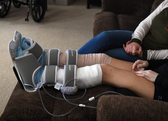 Kelly Case sits on a couch recovering from the injuries she suffered when she was hit by a drunk driver as she rode her skateboard near her Sacramento apartment in December.