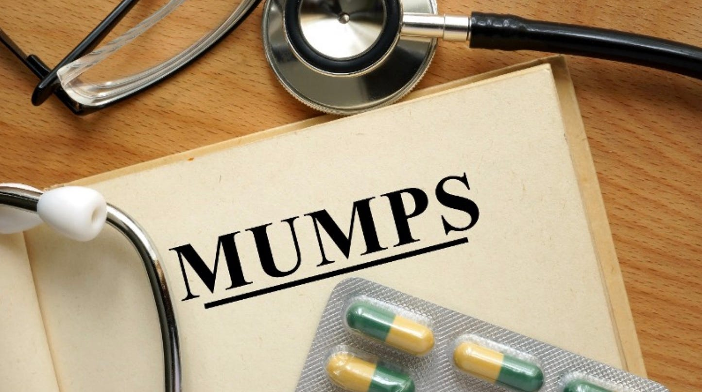 Indiana University mumps outbreak: Why some vaccinated students still got sick