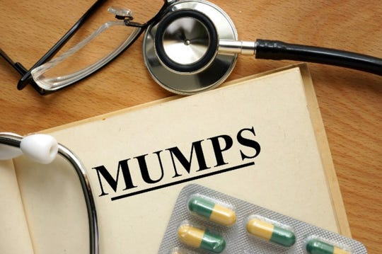 Treatment options for the mumps.
