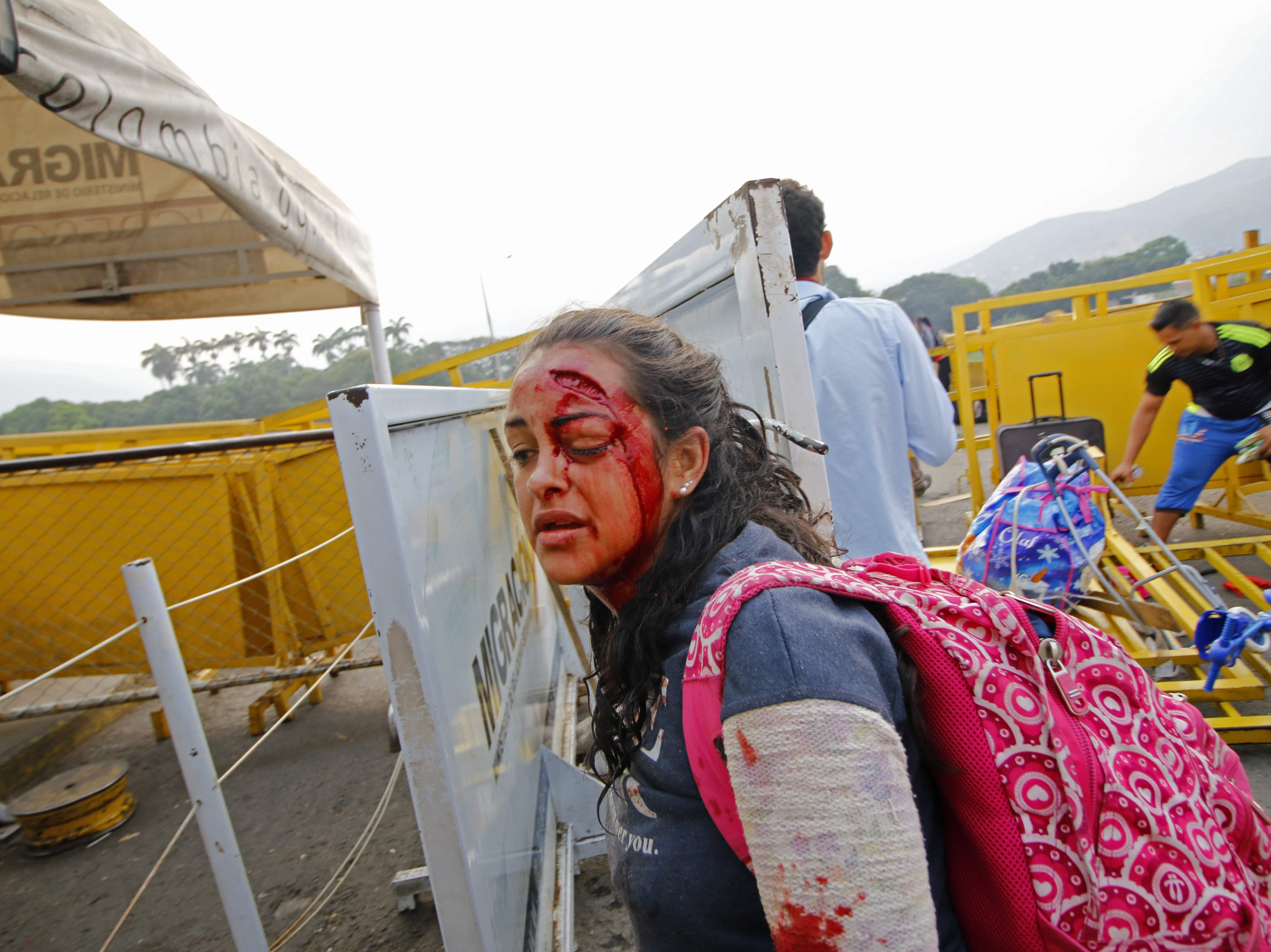 A woman walks after being injured when two Venezuelan armored vehicles drove from the Venezuelan side of Simon Bolivar International Bridge into Colombia, knocking down a security fence in Cucuta, on Feb. 23, 2019. Venezuela braced for a showdown between the military and regime opponents at the Colombian border on Saturday, when self-declared acting president Juan Guaido has vowed humanitarian aid would enter his country despite a blockade.