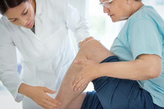 Hormones play a role in the development of leg veins.