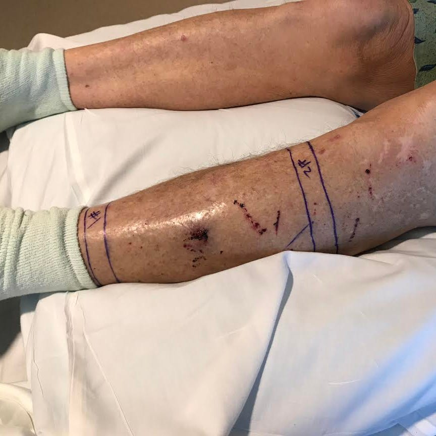 Man rode bike for half-hour to seek help after being bit by a rattlesnake on Phoenix trail