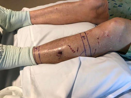 Jim Watkins' snakebite.