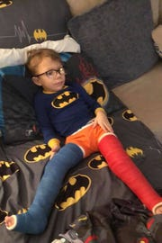 Liam Hickey, 4, has a type of skeletal dysplasia and had a second major surgery March 1.
