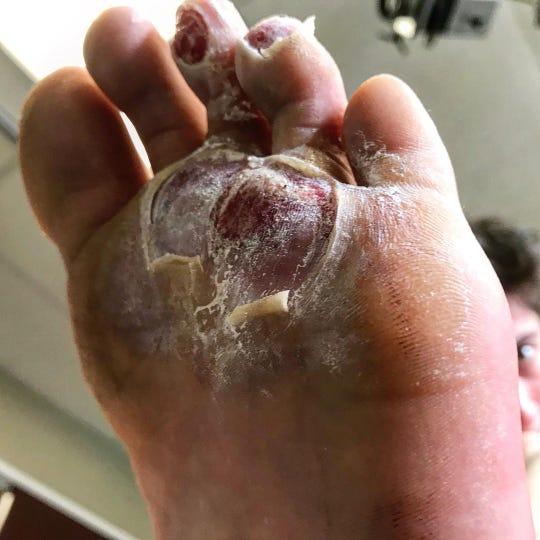 Kieran Tuntivate shows off his injured foot on his Instagram @kierunner.