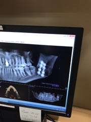 An X-ray of Ed Partee's broken jaw.