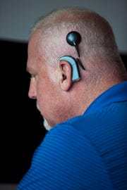 News-Press writer David Dorsey recently underwent a cochlear implant surgery to enhance his hearing capacity.