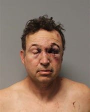 John Scrivner after he was treated at a local hospital and booked into jail.