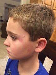 Ryley McKeown suffered minor bruising after is accident in October.