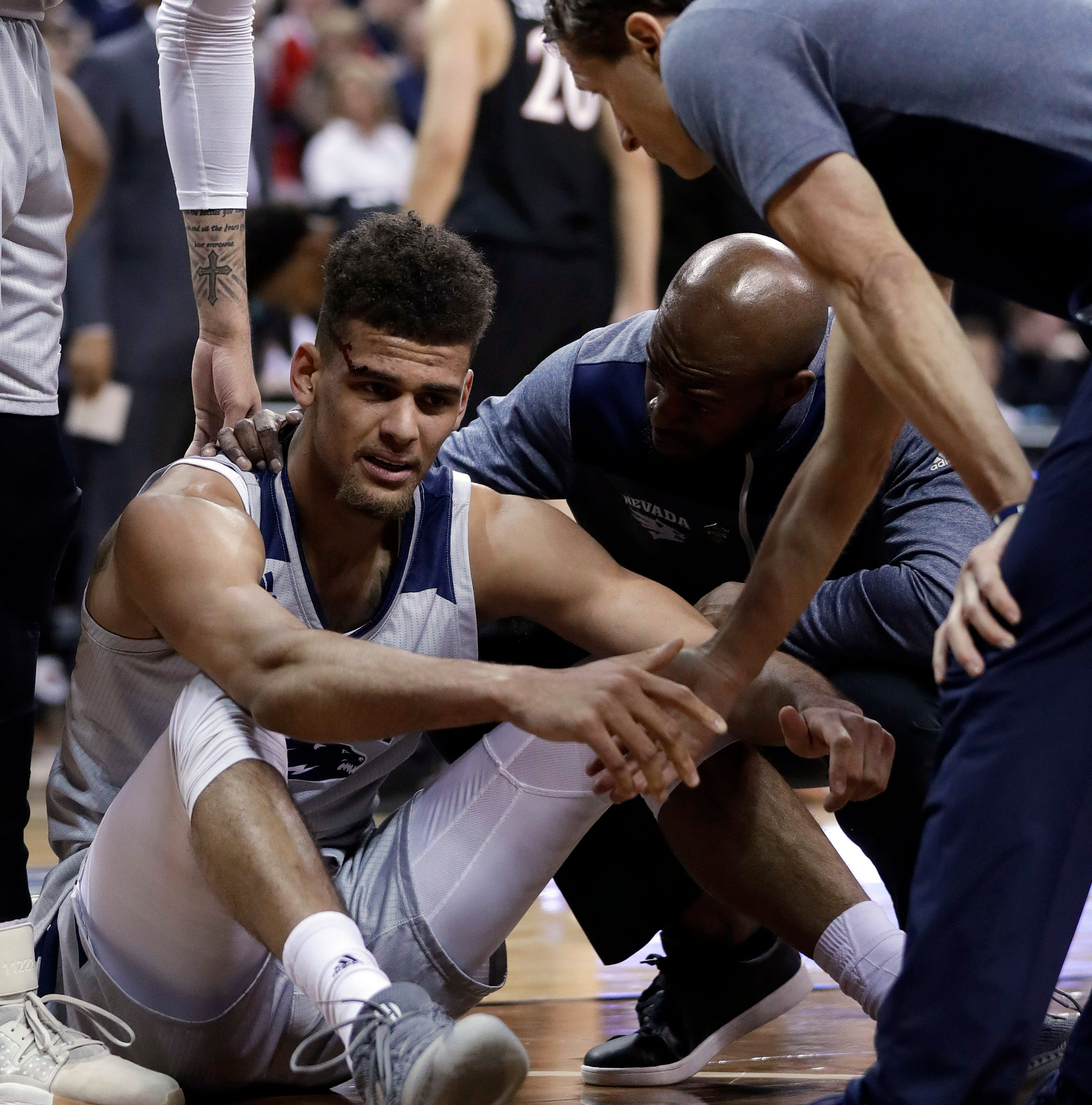 Nevada's Trey Porter leaves game vs. SDSU basketball game bleeding from his head