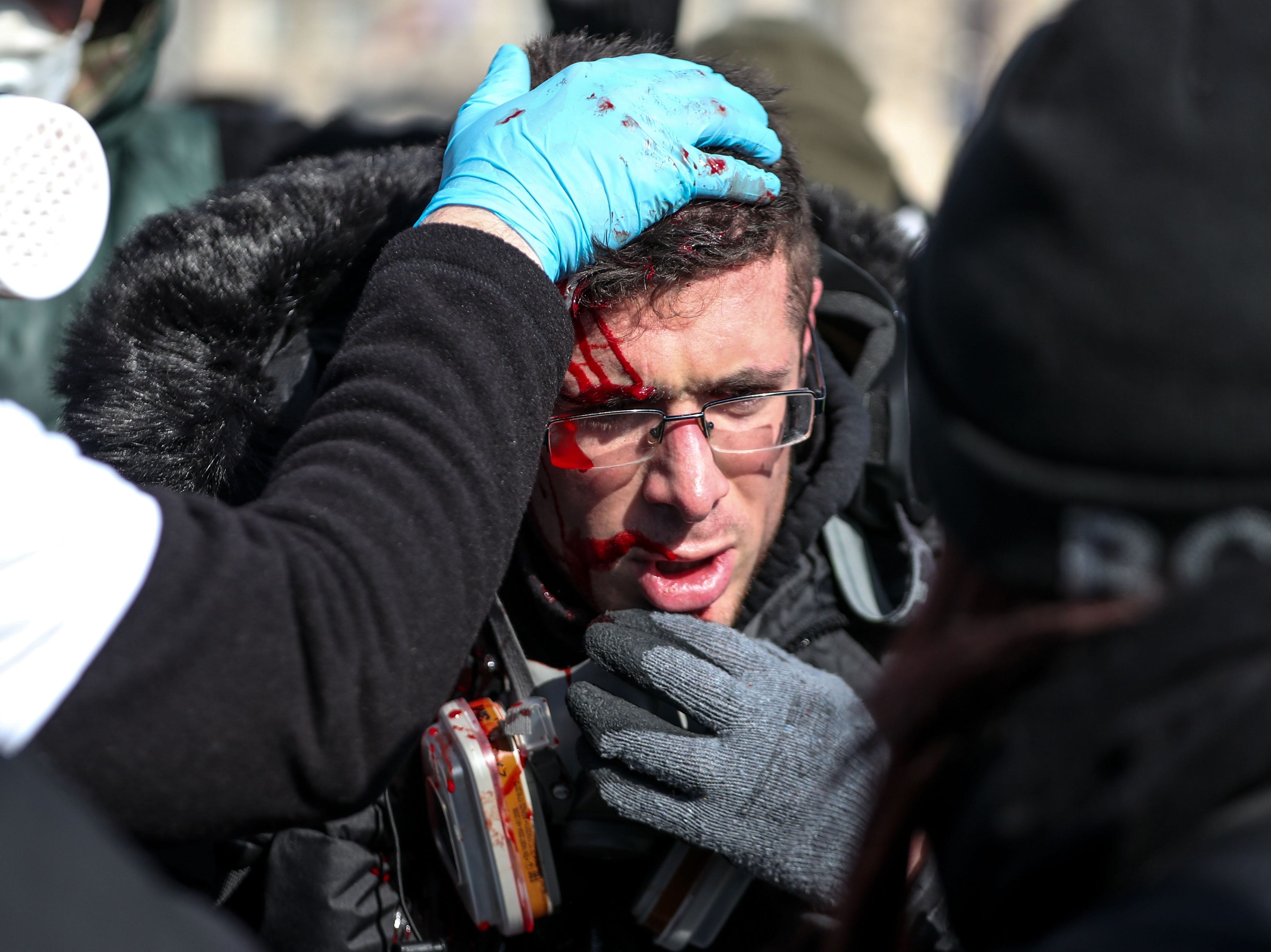 An injured protester is pictured during clashes with riot forces on the Champs-Elysees in Paris on March 16, 2019, during the 18th consecutive Saturday of demonstrations called by the 'Yellow Vest' (gilets jaunes) movement.