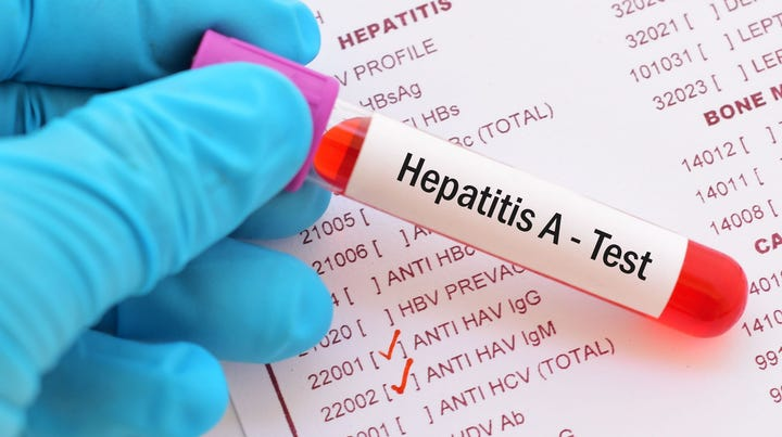Tennessee hepatitis A outbreak: 13 deaths, more than 2,200 infected