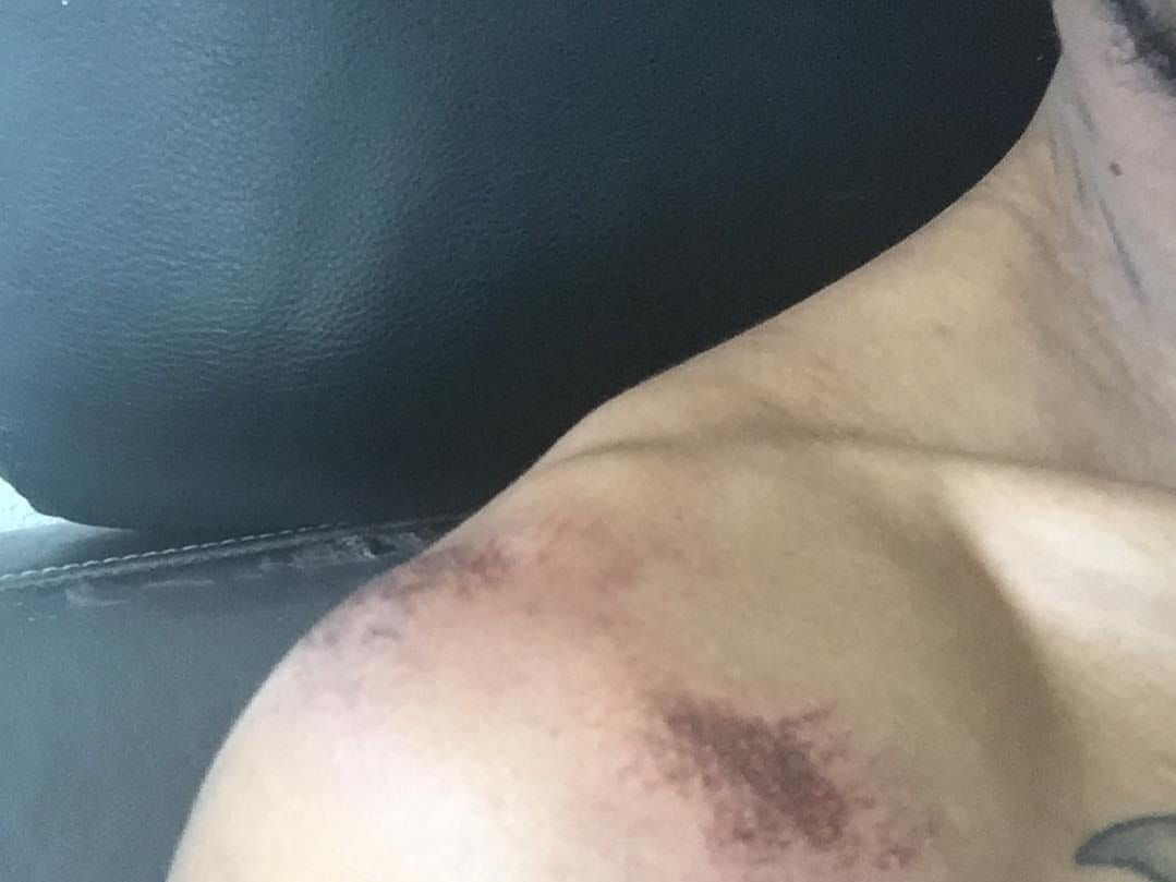 AaRone Fowler posted photos to his Instagram account after hesaid two Phoenix police officers beat him on March 17, 2019. Hesaid the officers told him his vehicle had been reported stolen.
