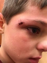 The gash above Miles Doyle's right eye required three stitches.
