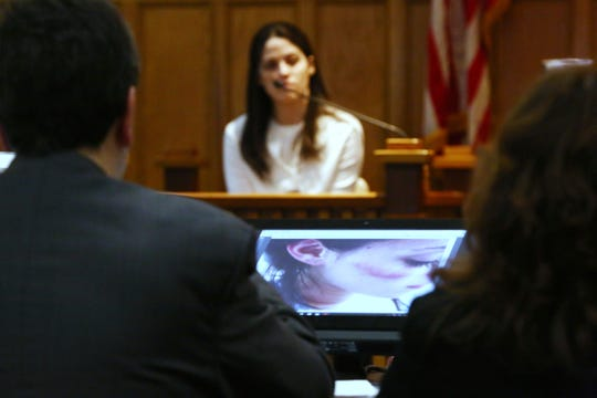 An evidence photo of Nicole Addimando with a bruise on her cheek on display  in the courtroom of Hon. Edward McLoughlin on March 25, 2019.