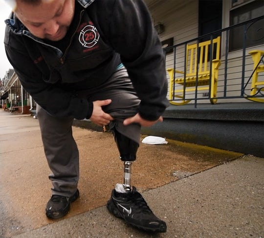 Christopher Wilhelm lifts his pants leg to show his prosthesis. Wilhelm is a volunteer firefighter in North York fighting for handicapped parking in front of his home. He lost his leg to bone cancer.