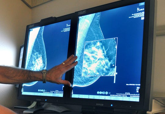 Dense breast tissue can hide cancer and tumors. In Michigan, women whose mammograms show that they have dense breasts, by law they must be notified of it.