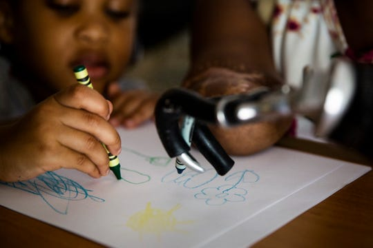 Aaliyah and Kayleigh draw with crayons at Kayleigh's parents' home in Coral Springs on Saturday, November 17, 2018. Kayleigh has grown accustomed to using her prosthetic, and is able to fill out forms, do her makeup, and eat on her own.
