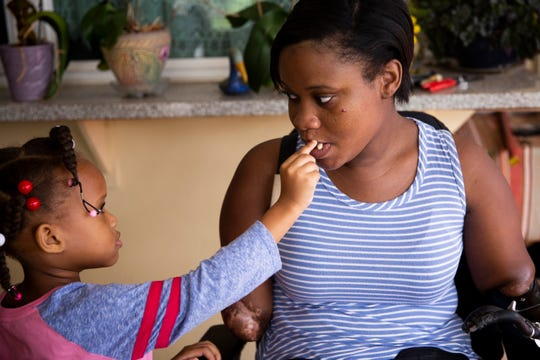 Aaliyah feeds Kayleigh peanuts after getting home from school at Kayleigh's parents' home in Coral Springs on Monday, December 10, 2018. Aaliyah was two when Kayleigh first lost her limbs, and it took some time for her to adjust to the change. Now she constantly wants to be around her mom, and is always looking for ways to help her out.