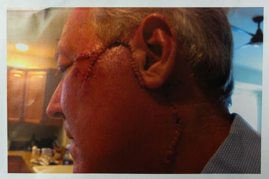 Pete Jepson, 62, was diagnosed with a rare and aggressive form of skin cancer, Merkel cell carcinoma, last year. A tumor the size of a pen point had to be removed from his face, and the surgeon decided to take a wide margin to ensure the cancer did not spread. The result was a significant amount of scarring, shown in this photo. Plastic surgery has since made the scar nearly invisible.