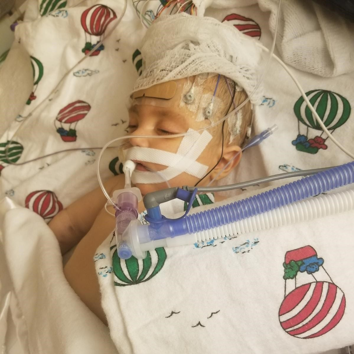 After an outpouring of support, the Waukesha baby who needed a partial liver transplant has died