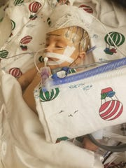 Marcus Albers, a baby boy in need of a parcial liver transplant, died on April 10 at Children's Hospital of Wisconsin.