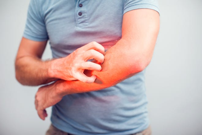 These chronic skin conditions usually aren't talked about, but they are common.