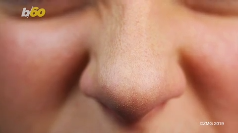 New nose job procedure requires no surgery and only takes 5 minutes