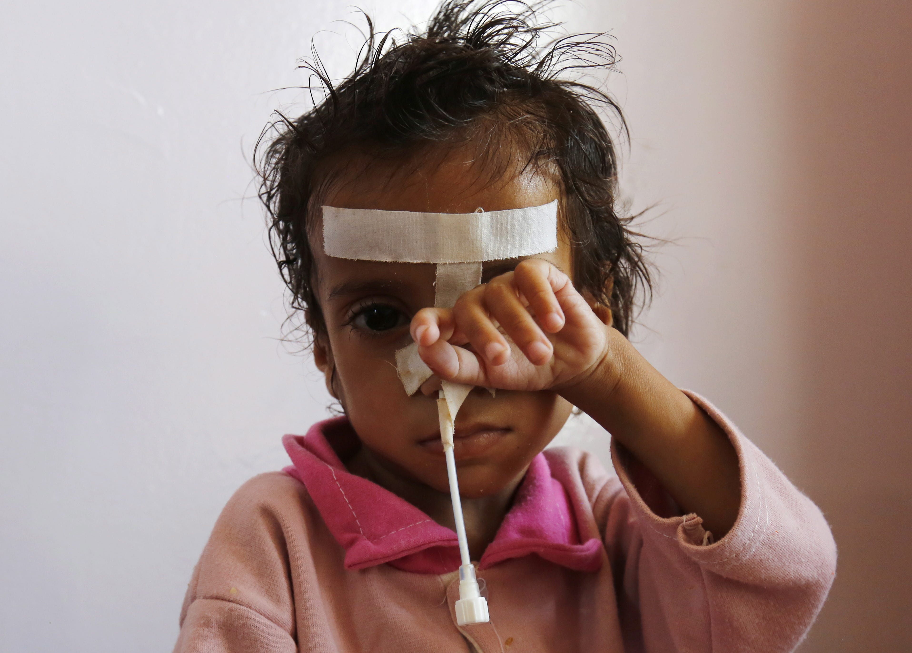 A malnourished child receives medical attention at a malnutrition treatment center in Sana'a, Yemen on March 18, 2019. According to reports, over two million children in Yemen are suffering from acute malnutrition, including 400,000 severe acutely malnourished children fighting for their lives. Nearly 30,000 children under five die every year from diseases caused by the malnutrition in the war-torn Arab country.