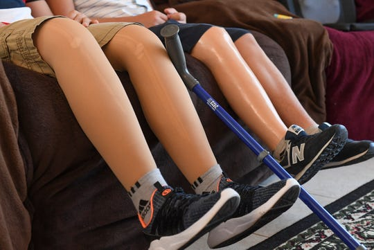 The prosthetic legs of Abdul Saidov, 15 (left), and his friend Doni Musaev, 14, are seen as they sit on a sofa at the home of their cousin Julie Scott on Monday, March 25, 2019, in Indian River County. The boys from Uzbekistan who are best friends, were hit by a speeding car in 2017 in Uzbekistan, resulting in Abdul losing both legs, and Doni, losing his right leg below the knee. The boys have been receiving treatment for their injuries at the Shriners Hospital for Children in Tampa, while visiting the Scotts.