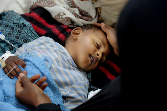In this May 12, 2017 photo, released by UNICEF, a child is treated for suspected cholera infection at a hospital in Sanaa, Yemen. An Associated Press investigation finds the massive cholera epidemic was aggravated by corruption and official intransigence. The investigation has found that both the Iranian-backed Houthis rebels and their main adversary in the war -- the U.S.- and Saudi-backed government that controls southern Yemen -- impeded efforts by relief groups to stem the epidemic.