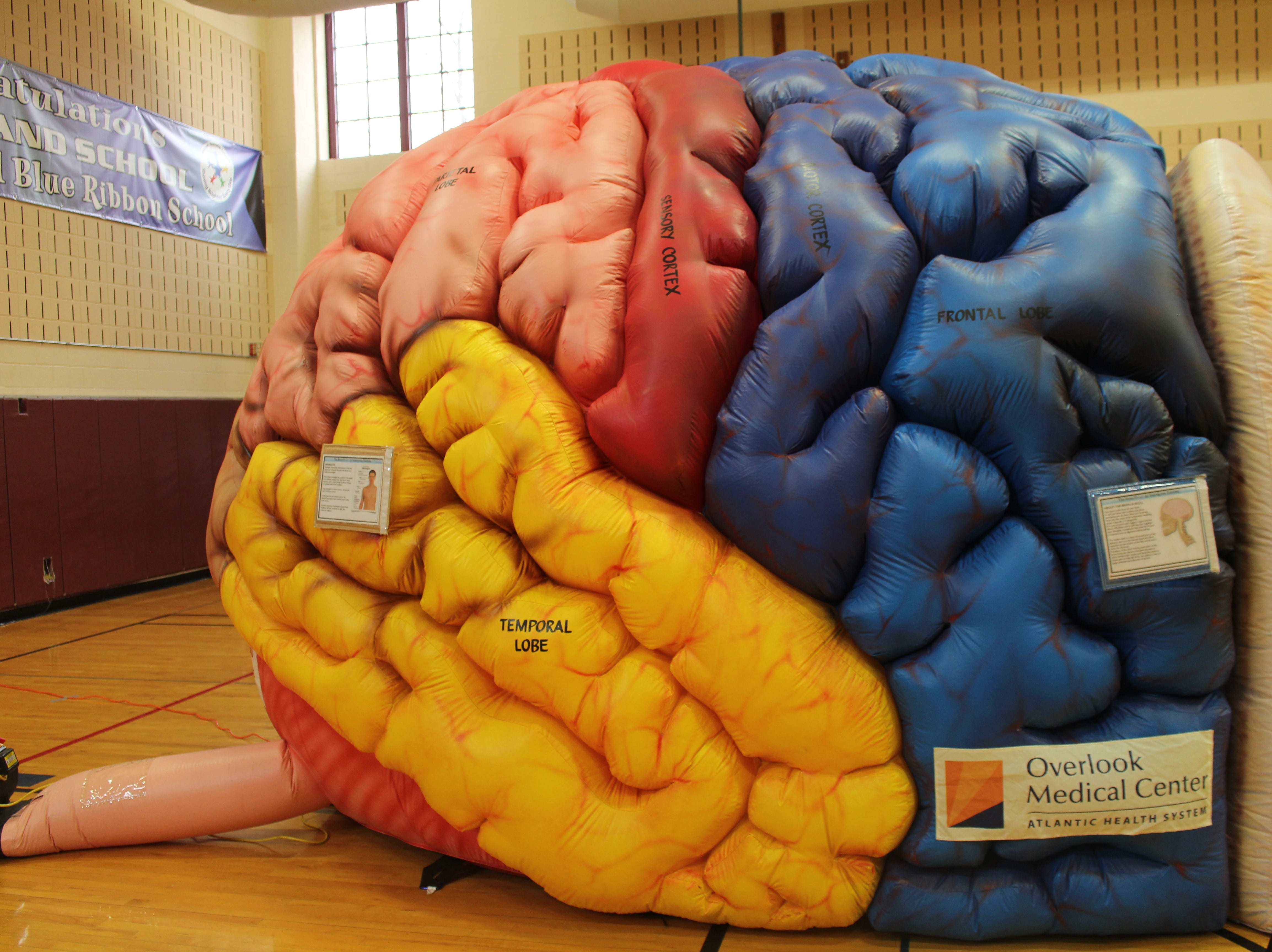 "The Overlook Medical Center Community Health Department presented the large ""Inflatable Brain"""