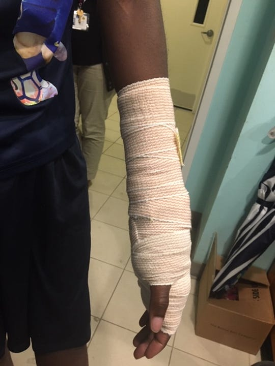 Ar' Marion Caldwell, 15, was injured during an altercation with another student at the Success Academy in Fort Myers Monday and treated at Lee Memorial Hospital.