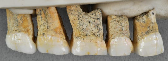 The right upper teeth of one of the newly discovered species Homo luzonensis. From left are two premolars and 3 molars. In a study released April 10, 2019, scientists report that tests on two samples from the species show minimum ages of 50,000 years and 67,000 years.