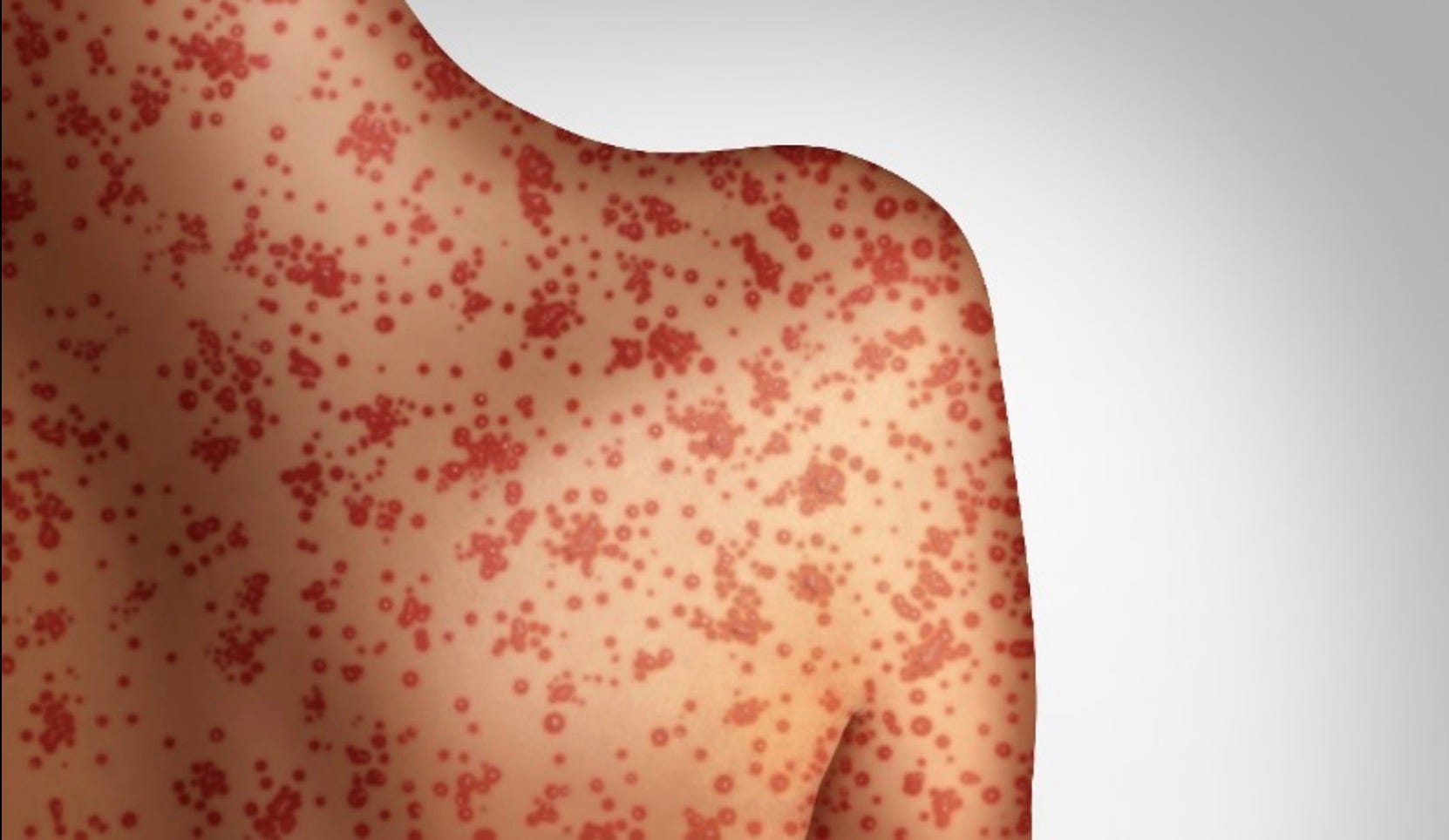 Measles sickens a second unvaccinated person in northeast Iowa