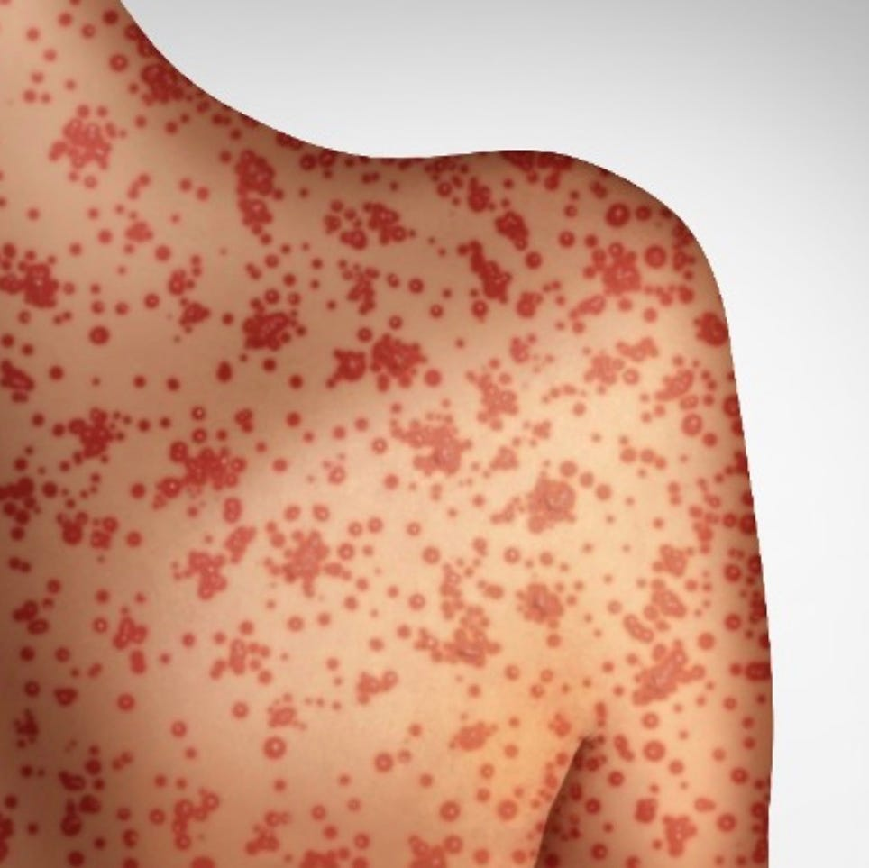 Man with measles who visited Mississippi may have exposed over 600 in Tennessee