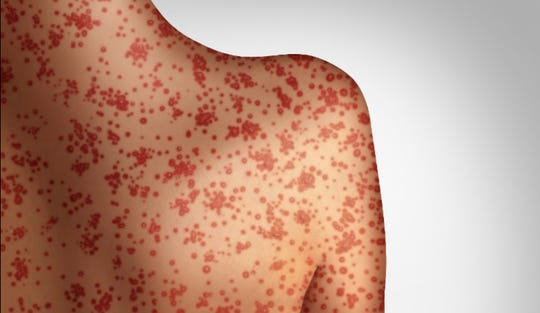 Measles is one of the most contagious diseases in the world, the World Health Organization says.