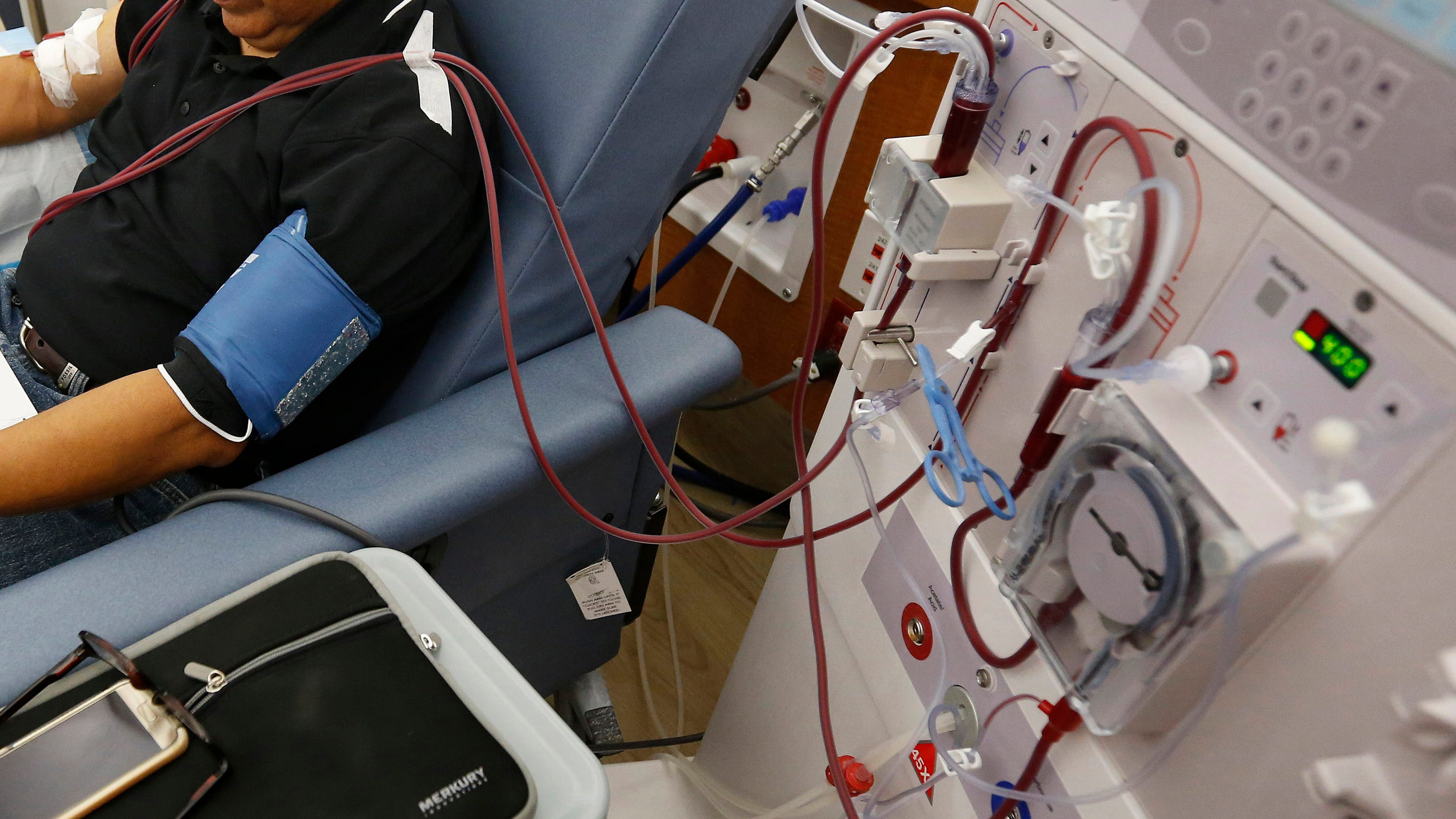 Prop 23 a strongarm measure ostensibly about better dialysis care. Don't fall for it.