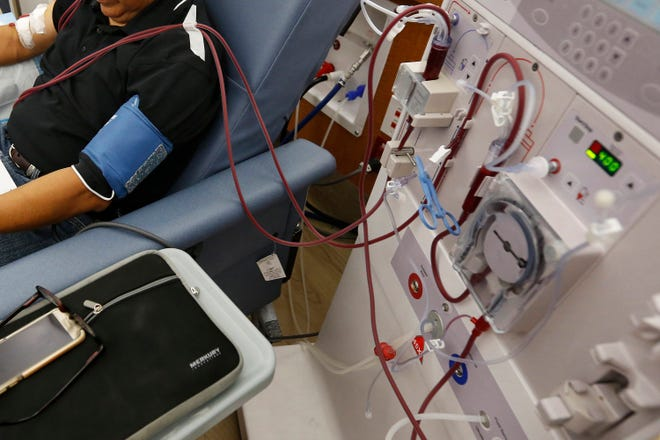 A patient undergoes dialysis at a clinic in Sacramento, California, in September 2018.