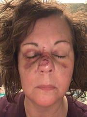 Lisa Lavia Ryan after surgery.