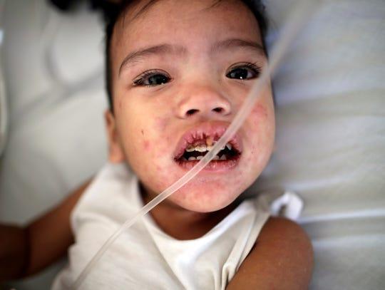 Un niño enfermo de sarampión recibe tratamiento en un hospital público.