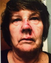 Pamela Flanigan allegedly suffered facial injuries and lost teeth as a result of tripping over the curb.