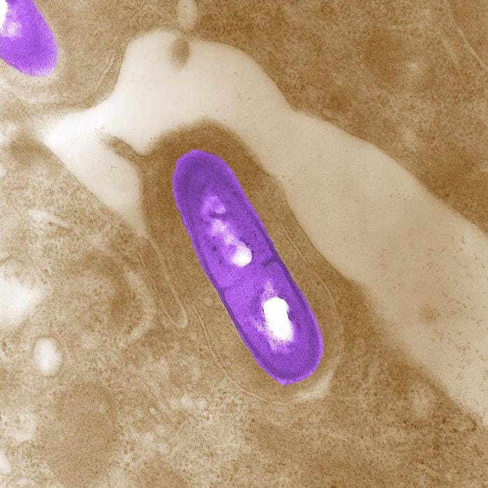 Multistate listeria outbreak including in NJ; 1 person dead