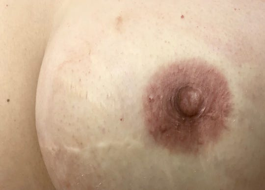 This areola and nipple tattoo by Fernicola gives an illusion that it is three-dimensional, when it actually is on flat skin.