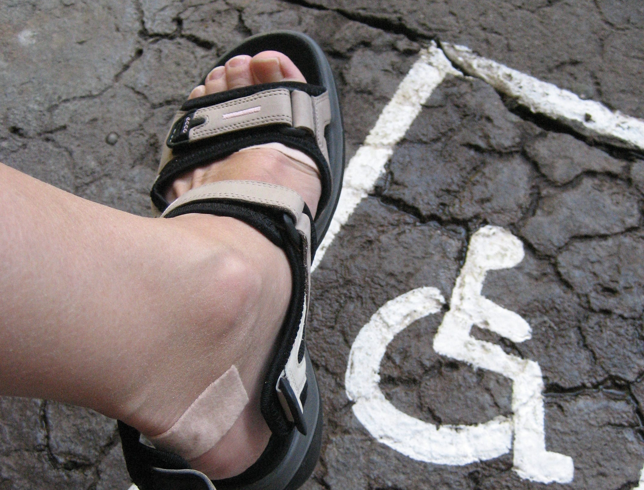 Heel that pain: Feet can feel the pinch from spurs, fasciitis and other issues