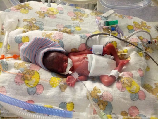 Layla Gaskin was born at 23 weeks and weighed a scant 1 pound, 4 ounces.