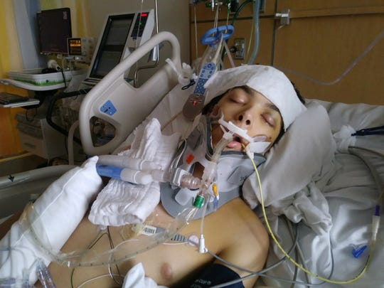 Jayden Paeth, 16, sustained serious injuries after being struck by a car in February 2019.