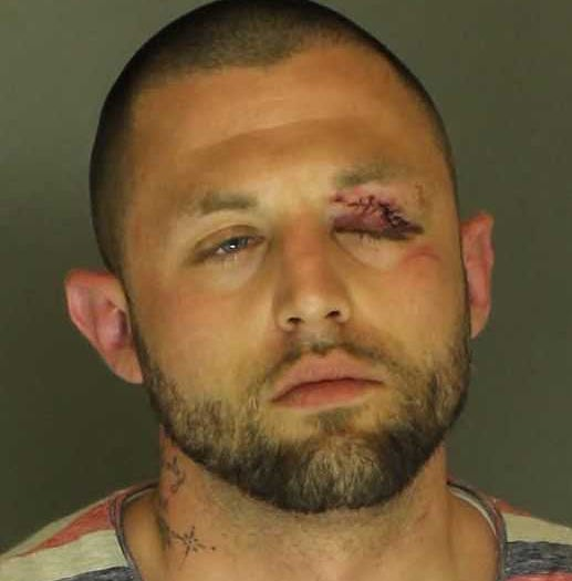 Gnarly eye injury suffered in wreck after alleged attack in northern York County