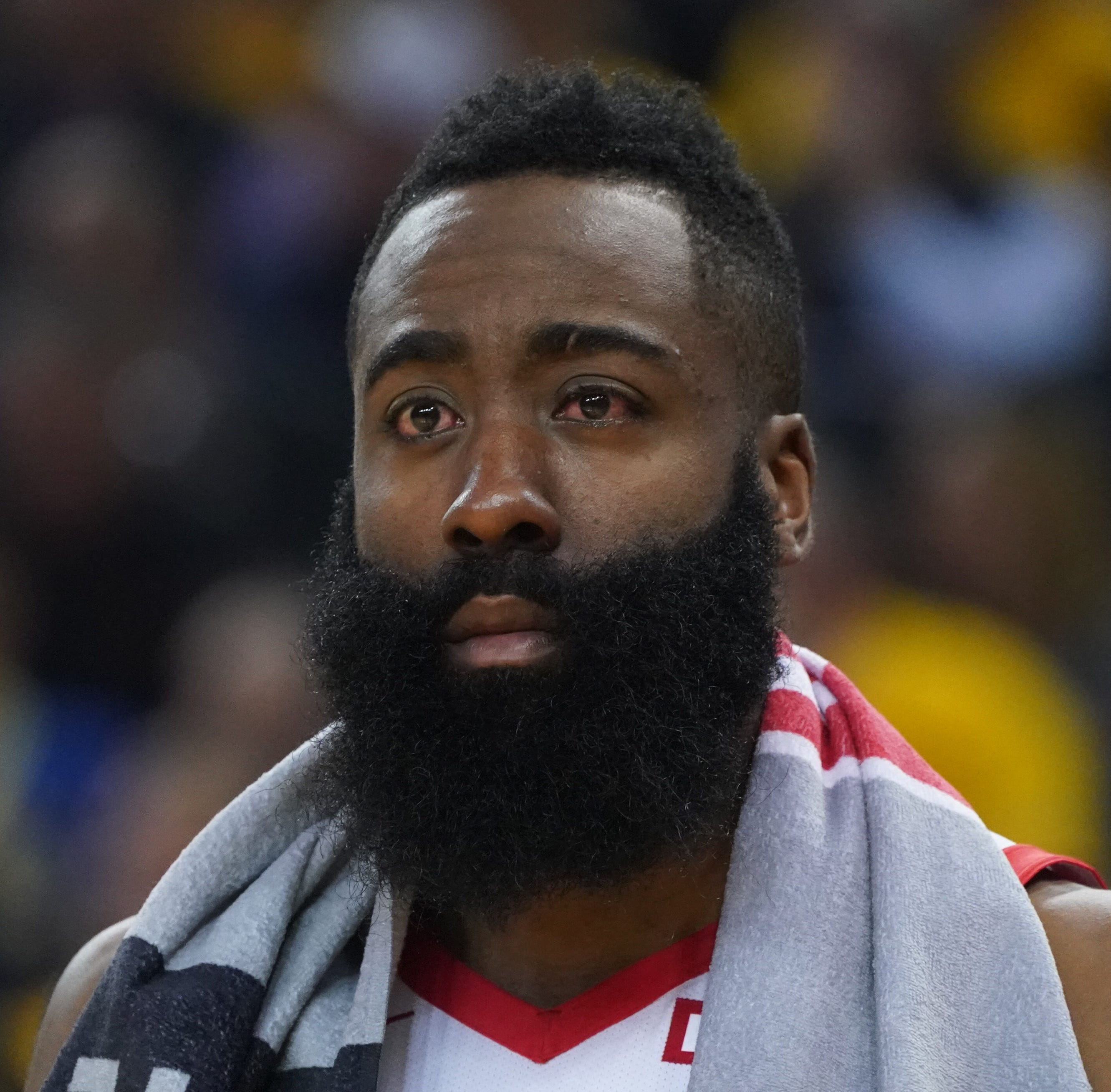 James Harden suffers brutal eye injury in Houston Rockets' loss in Game 2